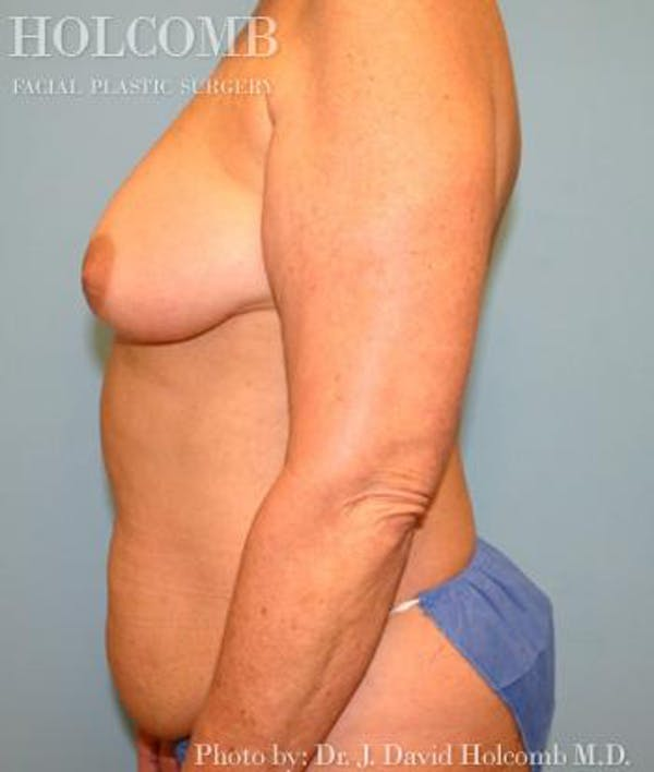 Mommy Makeover Gallery - Patient 6236554 - Image 5