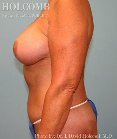 Mommy Makeover Gallery - Patient 6236554 - Image 6