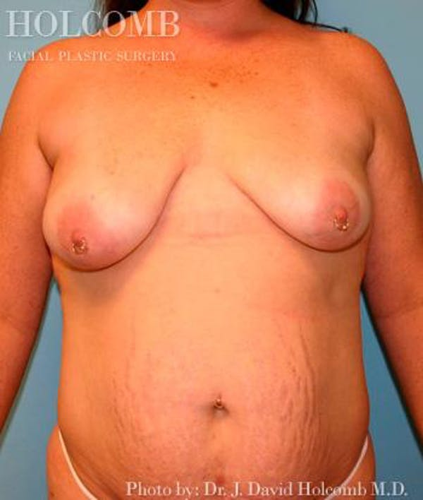 Mommy Makeover Gallery - Patient 6236556 - Image 1
