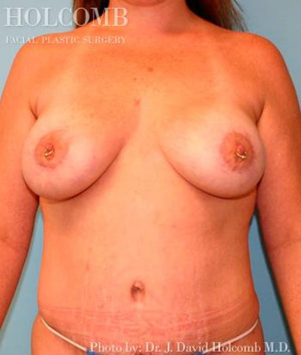 Mommy Makeover Gallery - Patient 6236556 - Image 2