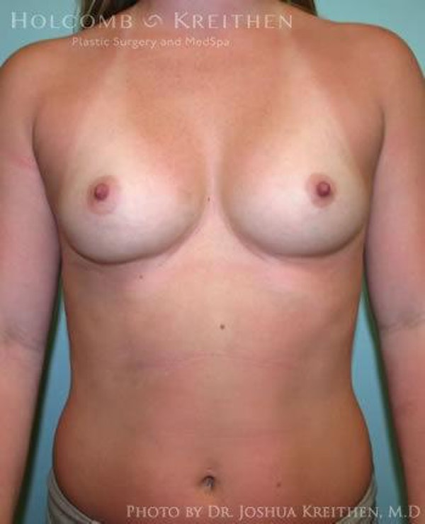 Breast Augmentation Gallery - Patient 6236557 - Image 1