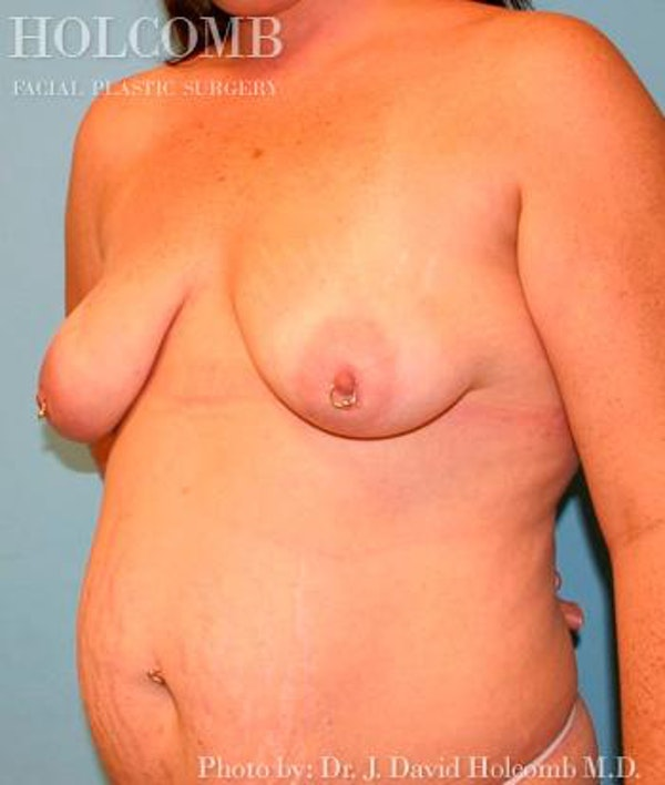 Mommy Makeover Gallery - Patient 6236556 - Image 3