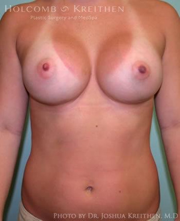 Breast Augmentation Gallery - Patient 6236557 - Image 2