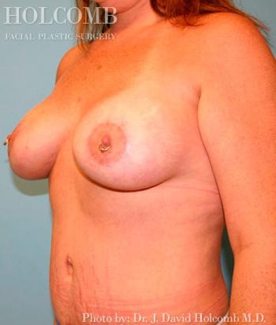 Mommy Makeover Gallery - Patient 6236556 - Image 4