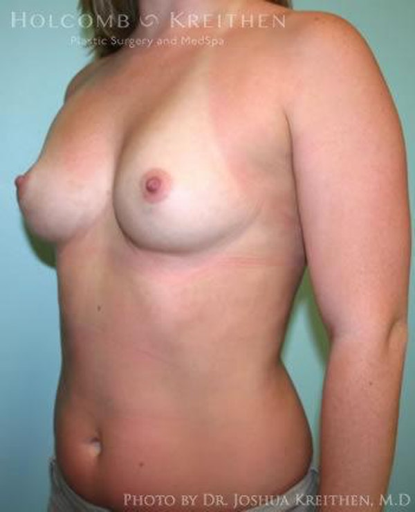Breast Augmentation Gallery - Patient 6236557 - Image 3