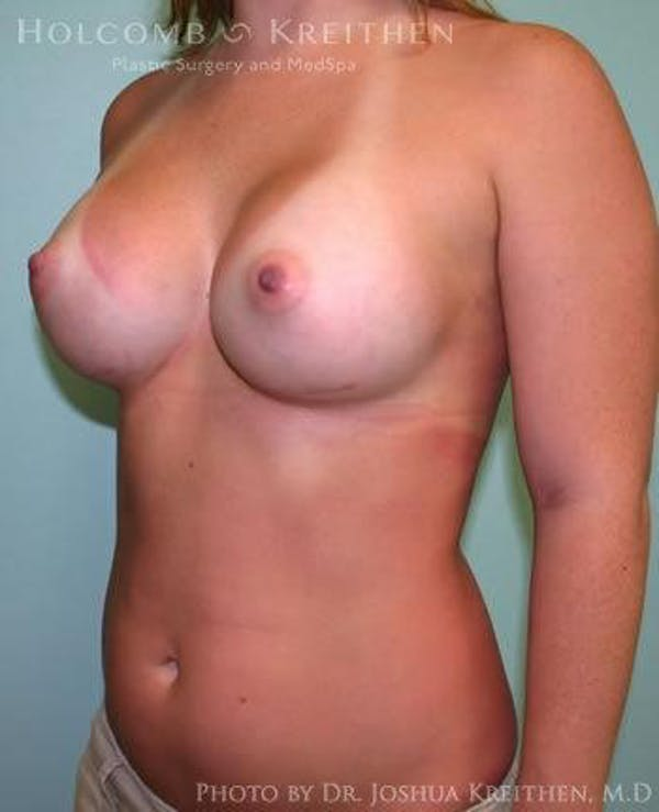 Breast Augmentation Gallery - Patient 6236557 - Image 4