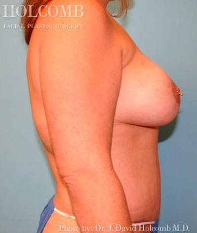 Mommy Makeover Gallery - Patient 6236556 - Image 6