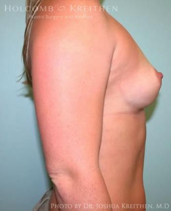 Breast Augmentation Gallery - Patient 6236557 - Image 5