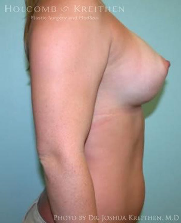 Breast Augmentation Gallery - Patient 6236557 - Image 6