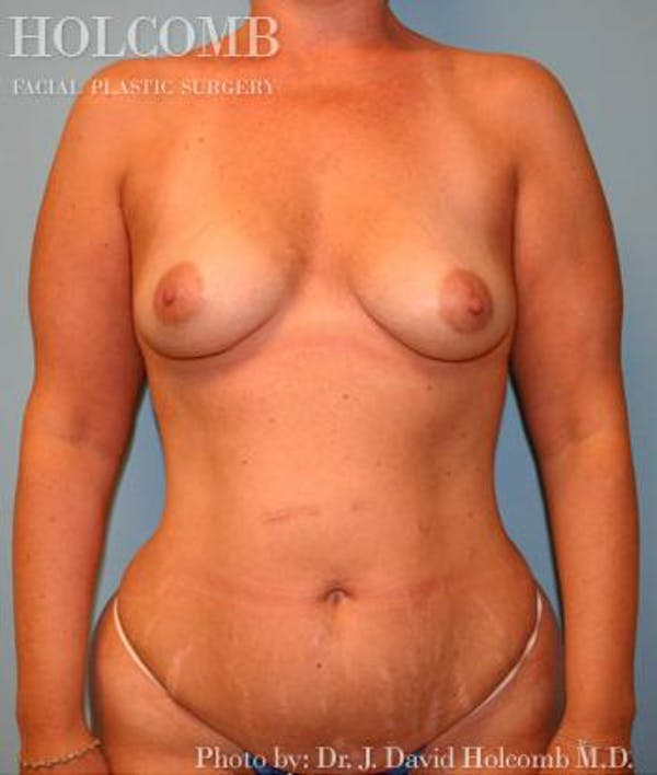 Mommy Makeover Gallery - Patient 6236559 - Image 1
