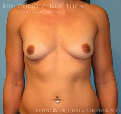 Breast Augmentation Gallery - Patient 6236558 - Image 1