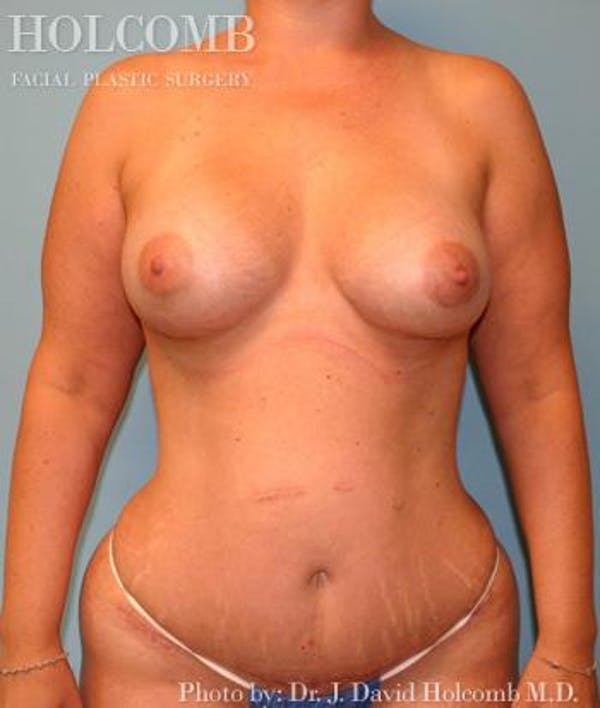Mommy Makeover Gallery - Patient 6236559 - Image 2
