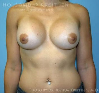 Breast Augmentation Gallery - Patient 6236558 - Image 2