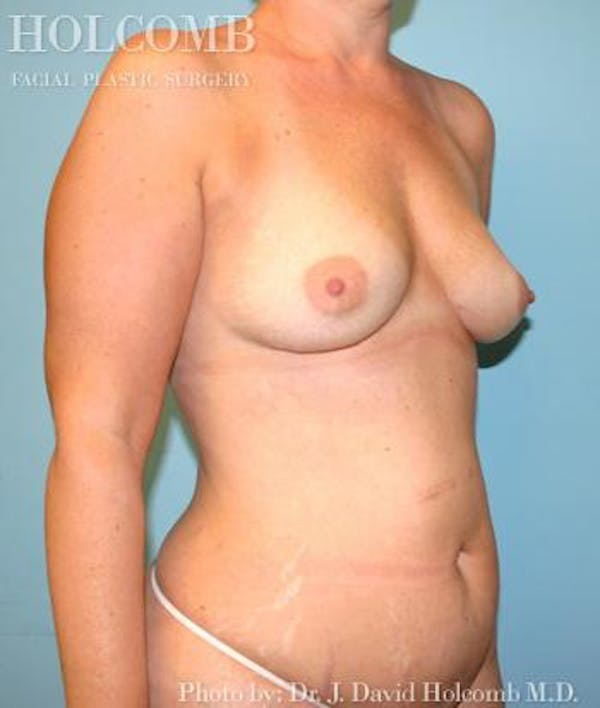 Mommy Makeover Gallery - Patient 6236559 - Image 3