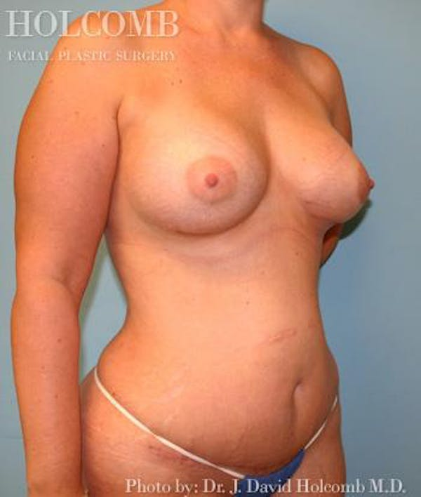 Mommy Makeover Gallery - Patient 6236559 - Image 4