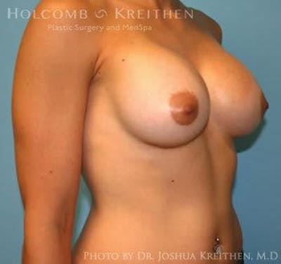 Breast Augmentation Gallery - Patient 6236558 - Image 4