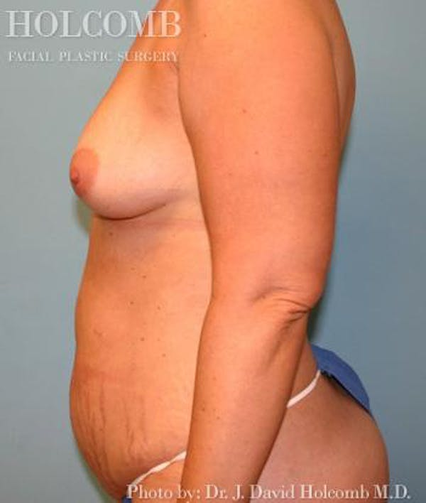 Mommy Makeover Gallery - Patient 6236559 - Image 5