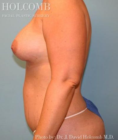 Mommy Makeover Gallery - Patient 6236559 - Image 6