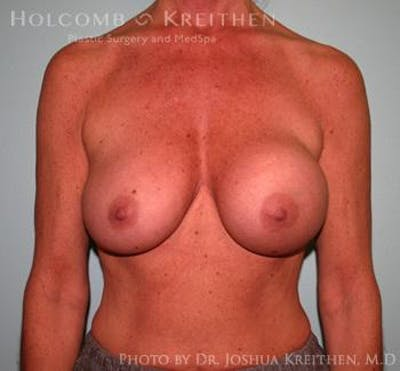 Breast Augmentation Gallery - Patient 6236560 - Image 4
