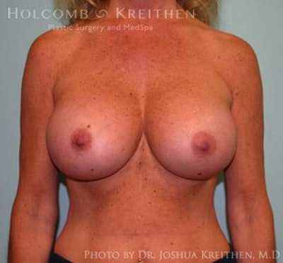 Breast Augmentation Gallery - Patient 6236560 - Image 2