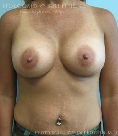 Breast Augmentation Gallery - Patient 6236562 - Image 2
