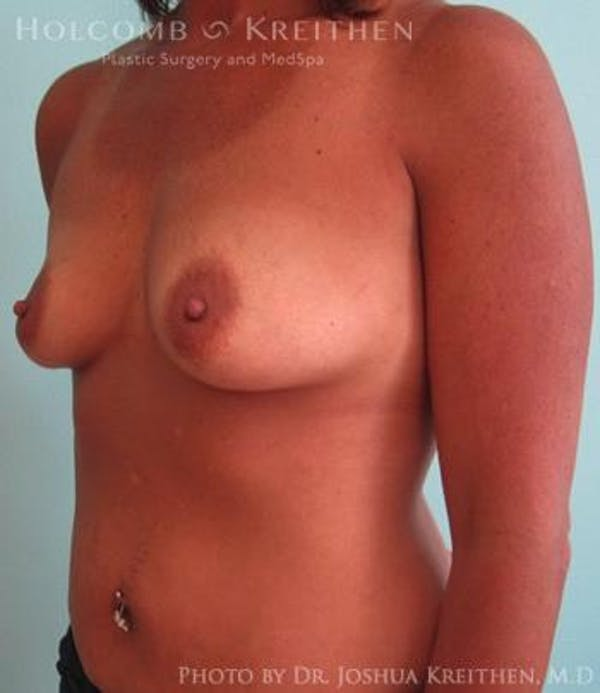 Breast Augmentation Gallery - Patient 6236562 - Image 3