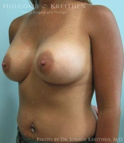 Breast Augmentation Gallery - Patient 6236562 - Image 4