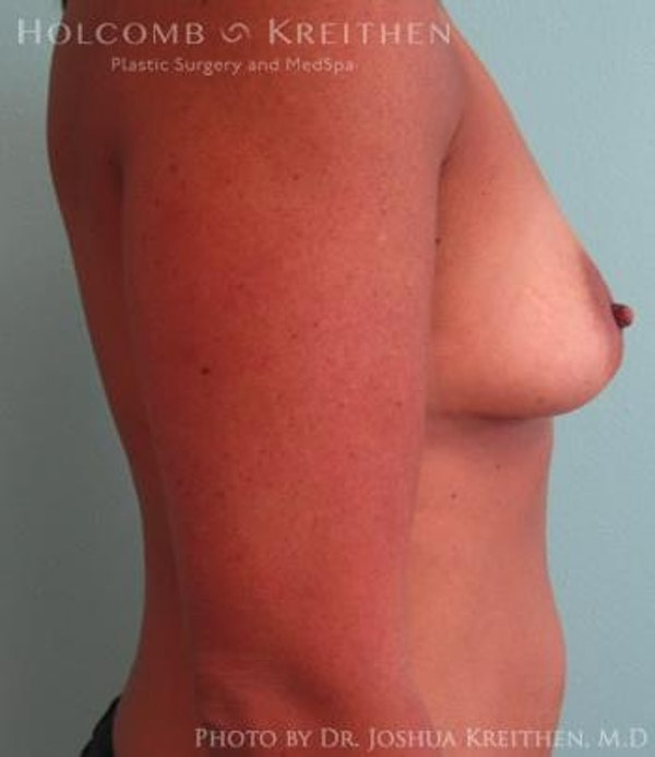 Breast Augmentation Gallery - Patient 6236562 - Image 5