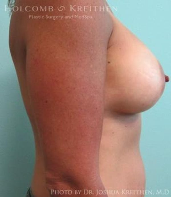 Breast Augmentation Gallery - Patient 6236562 - Image 6