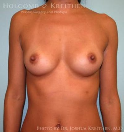 Breast Augmentation Gallery - Patient 6236563 - Image 6