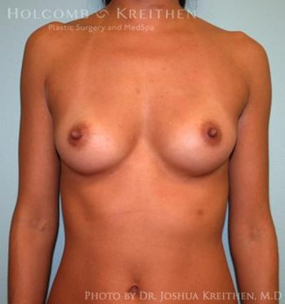 Breast Augmentation Gallery - Patient 6236563 - Image 1