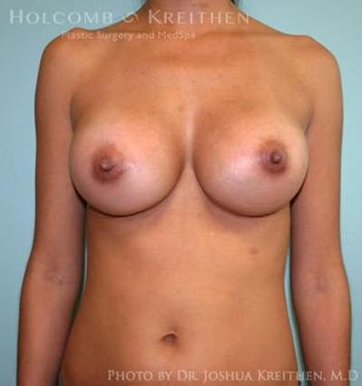 Breast Augmentation Gallery - Patient 6236563 - Image 2