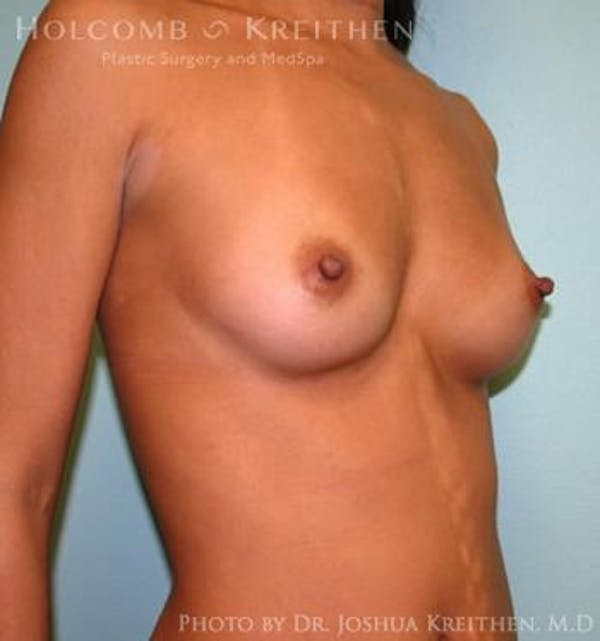 Breast Augmentation Gallery - Patient 6236563 - Image 3