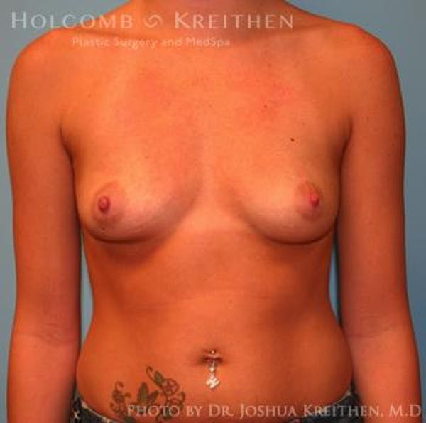 Breast Augmentation Gallery - Patient 6236564 - Image 1