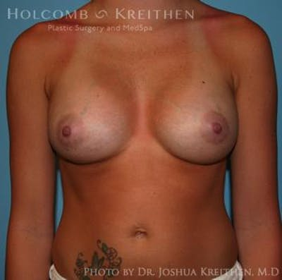 Breast Augmentation Gallery - Patient 6236564 - Image 2