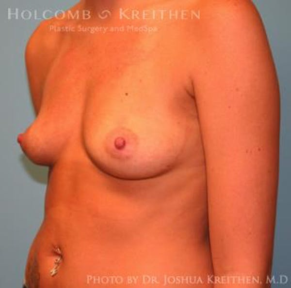 Breast Augmentation Gallery - Patient 6236564 - Image 3