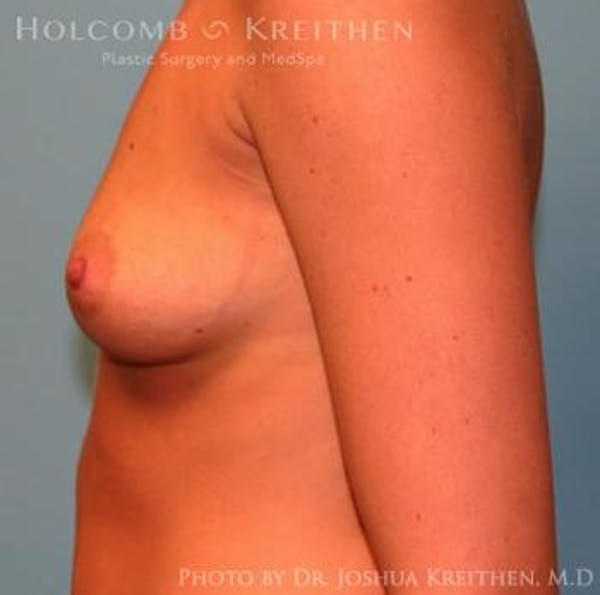 Breast Augmentation Gallery - Patient 6236564 - Image 5