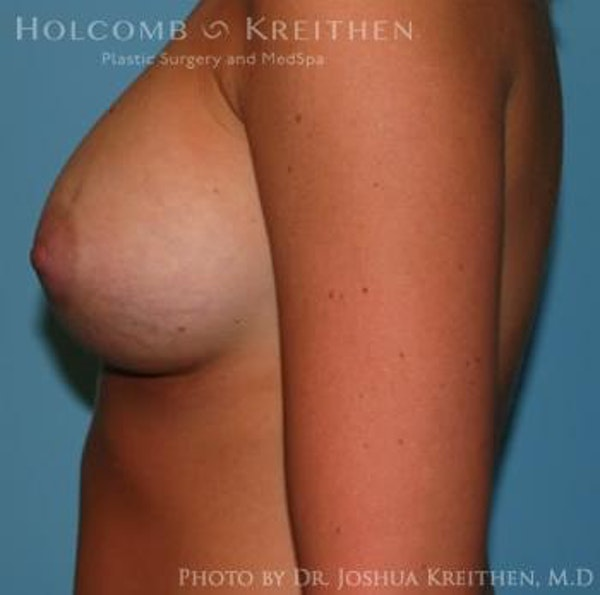 Breast Augmentation Gallery - Patient 6236564 - Image 6