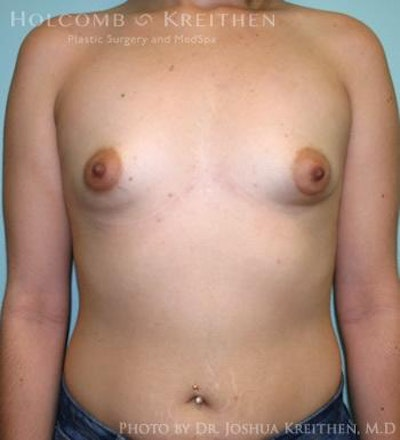 Breast Augmentation Gallery - Patient 6236565 - Image 1