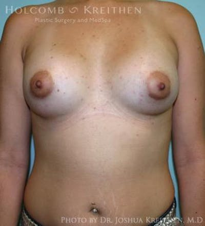Breast Augmentation Gallery - Patient 6236565 - Image 2