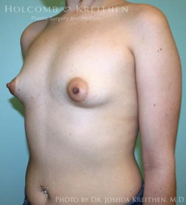 Breast Augmentation Gallery - Patient 6236565 - Image 3