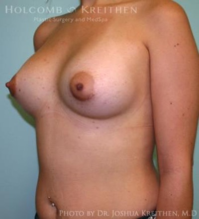 Breast Augmentation Gallery - Patient 6236565 - Image 4