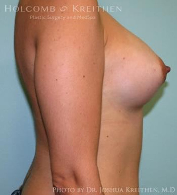 Breast Augmentation Gallery - Patient 6236565 - Image 6