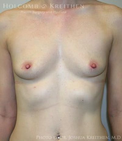Breast Augmentation Gallery - Patient 6236567 - Image 1
