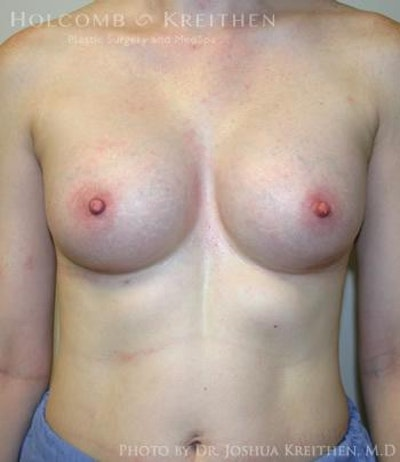 Breast Augmentation Gallery - Patient 6236567 - Image 2