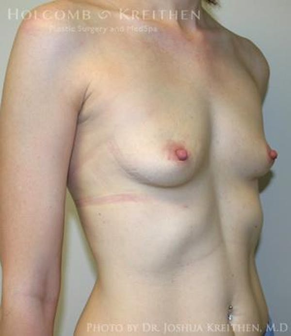 Breast Augmentation Gallery - Patient 6236567 - Image 3