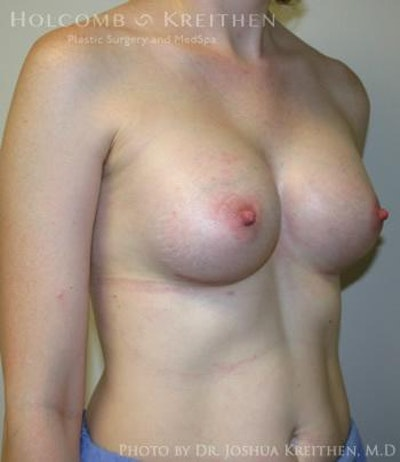 Breast Augmentation Gallery - Patient 6236567 - Image 4