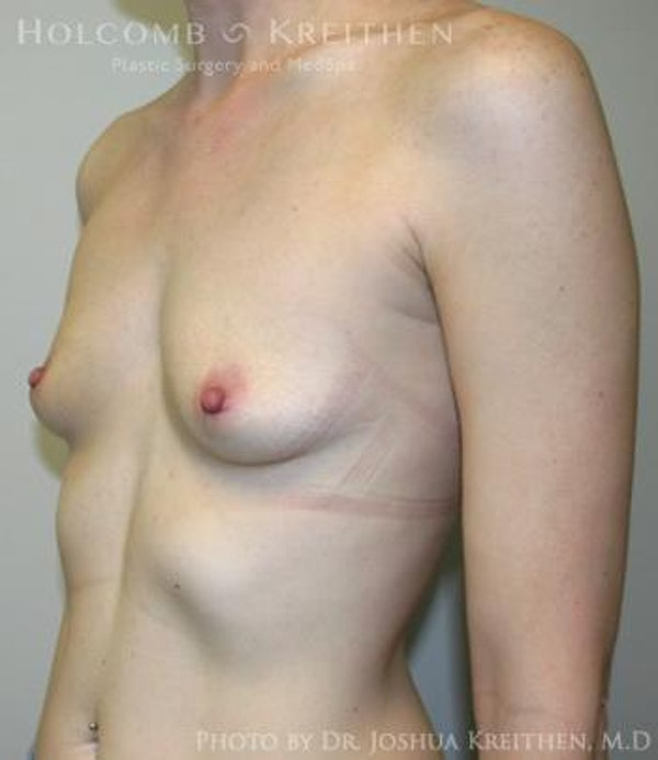 Breast Augmentation Gallery - Patient 6236567 - Image 5