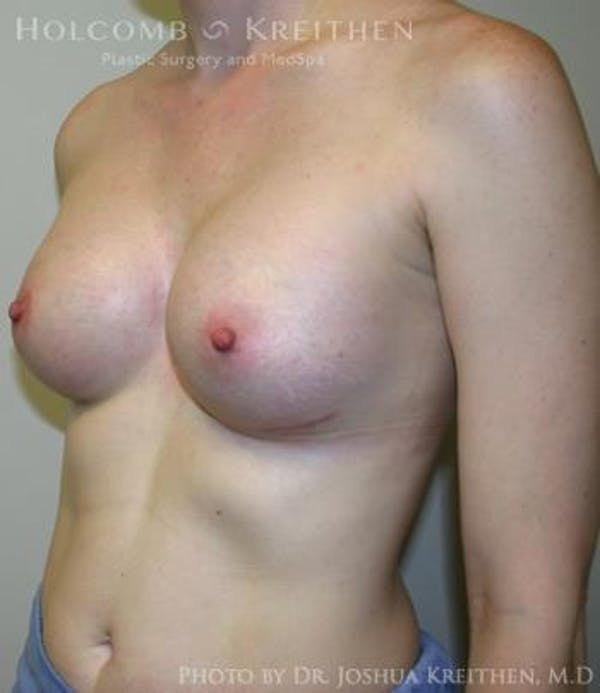 Breast Augmentation Gallery - Patient 6236567 - Image 6