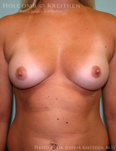 Breast Augmentation Gallery - Patient 6236568 - Image 1